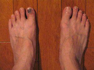 Foot_Nail