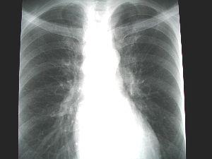 X_ray_1